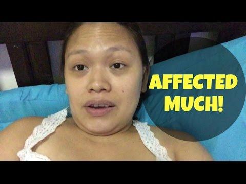 VLOG #411: AFFECTED MUCH! (Jul 2, 2015)