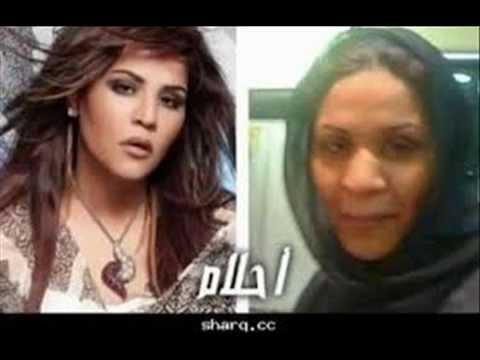 فنانات عربيات قبل و بعد عمليات التجميل Youtube