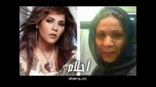 فنانات عربيات قبل و بعد عمليات التجميل