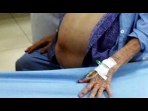 Doctors remove 26 pound tumor from 100-year-old Vietnamese woman