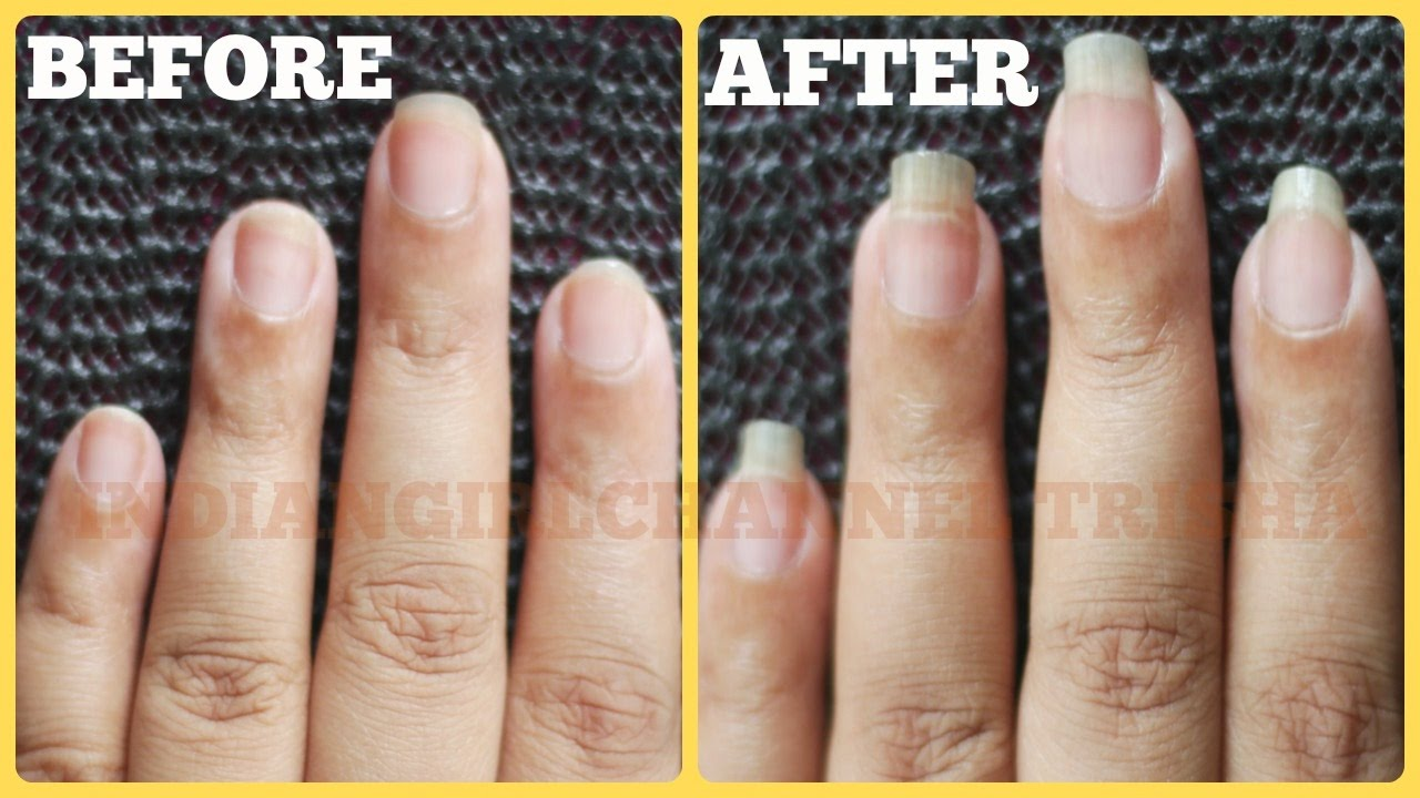 how to grow nails fast, long and strong/nail growth treatment/long ...