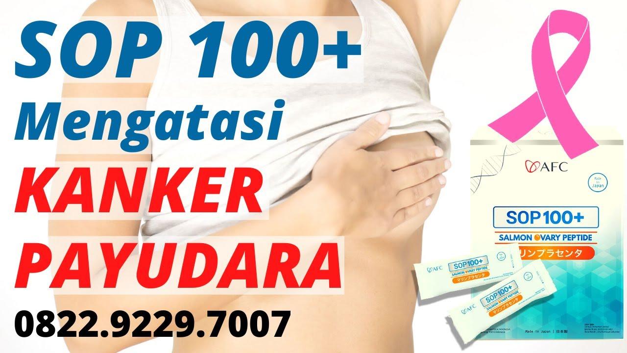 SOP 100+ untuk KANKER PAYUDARA Stadium 4 | AFC Life ...