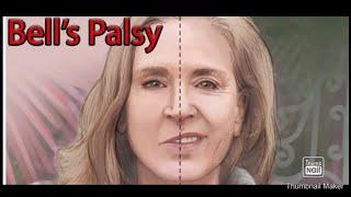 Bell's Palsy   Penyebab, Gejala, Diagnosis, Pengobatan, Patologi