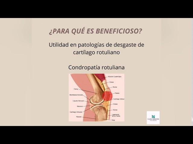 ¿Cómo realizar un vendaje neuromuscular para condropatía rotuliana?