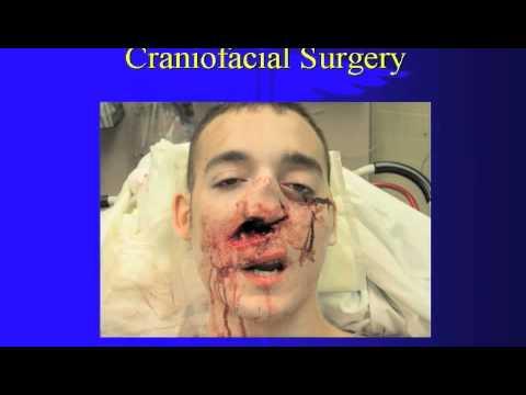 Reconstructive Surgery-part1.m4v