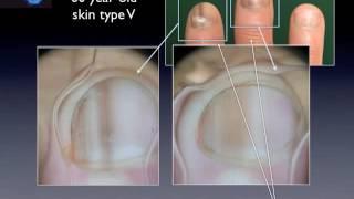 Nail pigmentation (advanced level) by L. Thomas