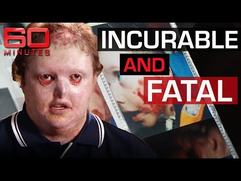 Rare And Mysterious Disease Causes Skin To Fall Off | 60 Minutes Australia