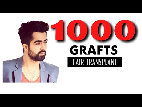 1000 grafts FUE hair transplantation result in India (Chandigarh & Ludhiana) Darling Buds Clinic from YouTube · Duration:  1 minutes 26 seconds