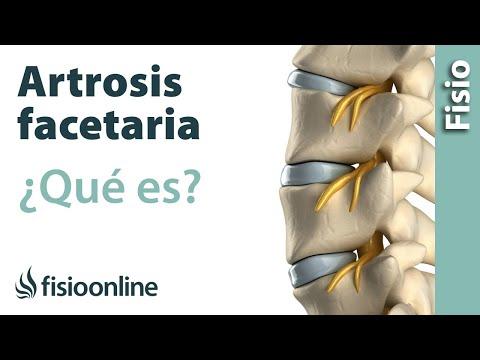 artrosicos apofisiarios