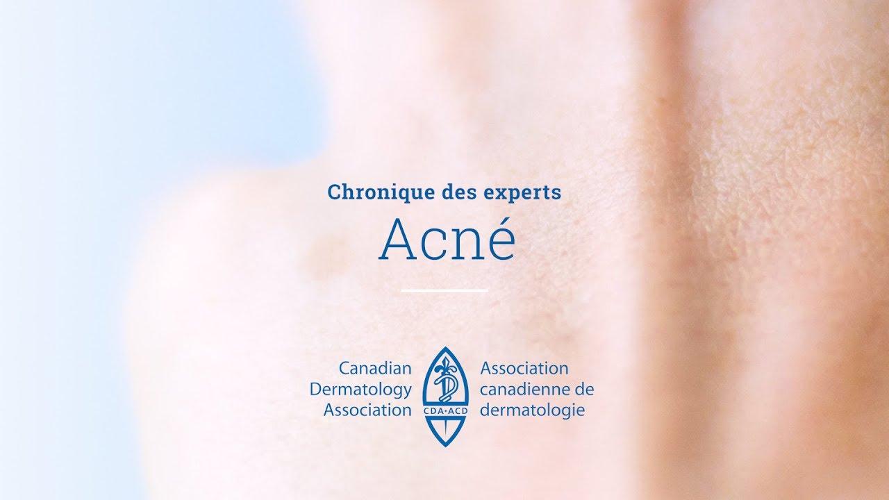Acne - Canadian Dermatology Association