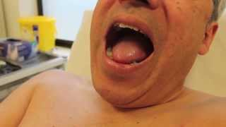 How to look for central cyanosis