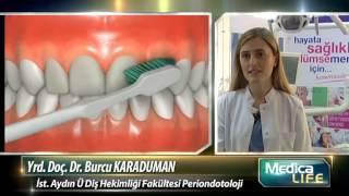 Diş Eti Hastalıklarının Sebebi ve Tedavi Yöntemleri Nelerdir?