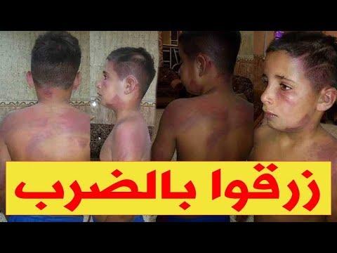 كارثة في سطيف..  أب يبرح ابنه 12 سنة ضربا بعين الكبيرة والسبب !!