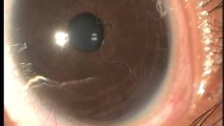 Dancing Worm Inside the Eye - by Dr. Venkatesh Prajna, Aravind Eye Hospital, Madurai, India