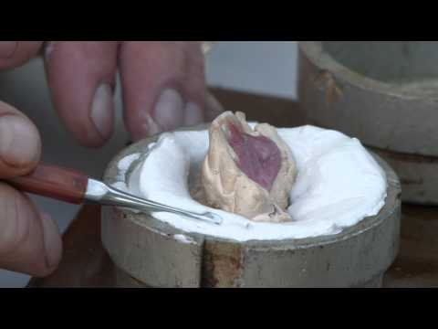 Tooth Fairies (part 14) - Hambahaldjad (osa 14) -- front teeth dentures by Dental Artist Heino Kalm