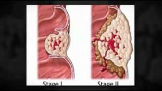 gyomorrák paraneoplasztikus szindrómák)