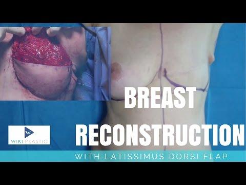 Breast Reconstruction with LATISSIMUS DORSI Flap