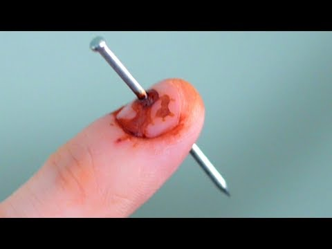 NAIL IN FINGER!