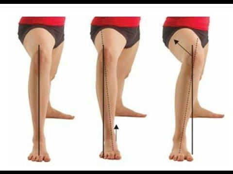 bow leg remedy | Tumblr