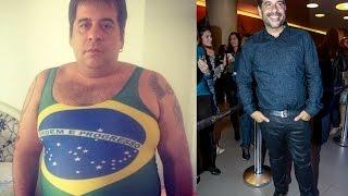 Antes e depois de Leandro Hassum - cirurgia bariátrica - redução de estômago emagrecimento