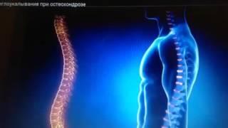 Боль в спине, грижи, онемение иглотерапевт Доктор Ким из Сеула(, 2015-12-08T16:44:33.000Z)