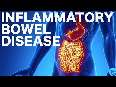 Crohn's Vs. Ulcerative Colitis