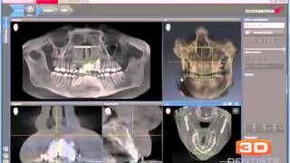 SiCAT Air Introduction by 3D Dentists
