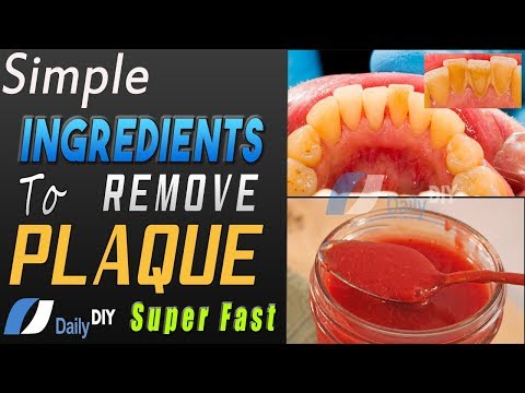How To Remove Plaque From teeth | Simple Ingredients For Teeth Plaque Cleaning At Home