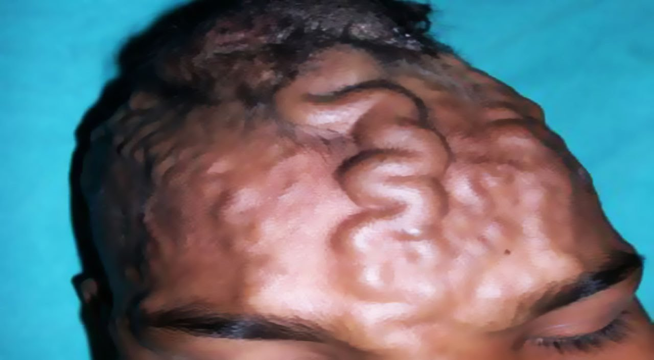 Massive Cyst on Forehead Removed by Indian Doctor - YouTube