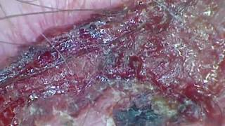 Under The Microscope - The One Inch Scab