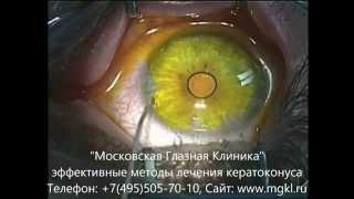 Кросслинкинг роговицы глаза при кератоконусе - видео операции(Операция коллагенового кросслинкинга роговицы (вид со стороны хирурга) при кератоконусе. Подробнее на..., 2015-11-27T14:46:40.000Z)