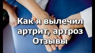 видео Как вылечить артроз стопы: советы врача