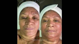 Microcurrent Facial on Mature Skin