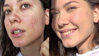 Макияж для проблемной кожи | Как скрыть прыщи и постакне