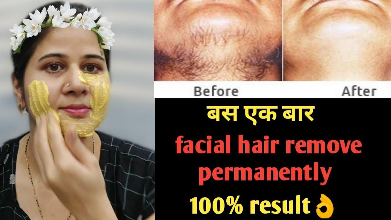 Unwanted hair remove permanently एक बार निकल जाएंगे दोबारा नहीं आएंगे 100% गारंटी#unwantedhairremove