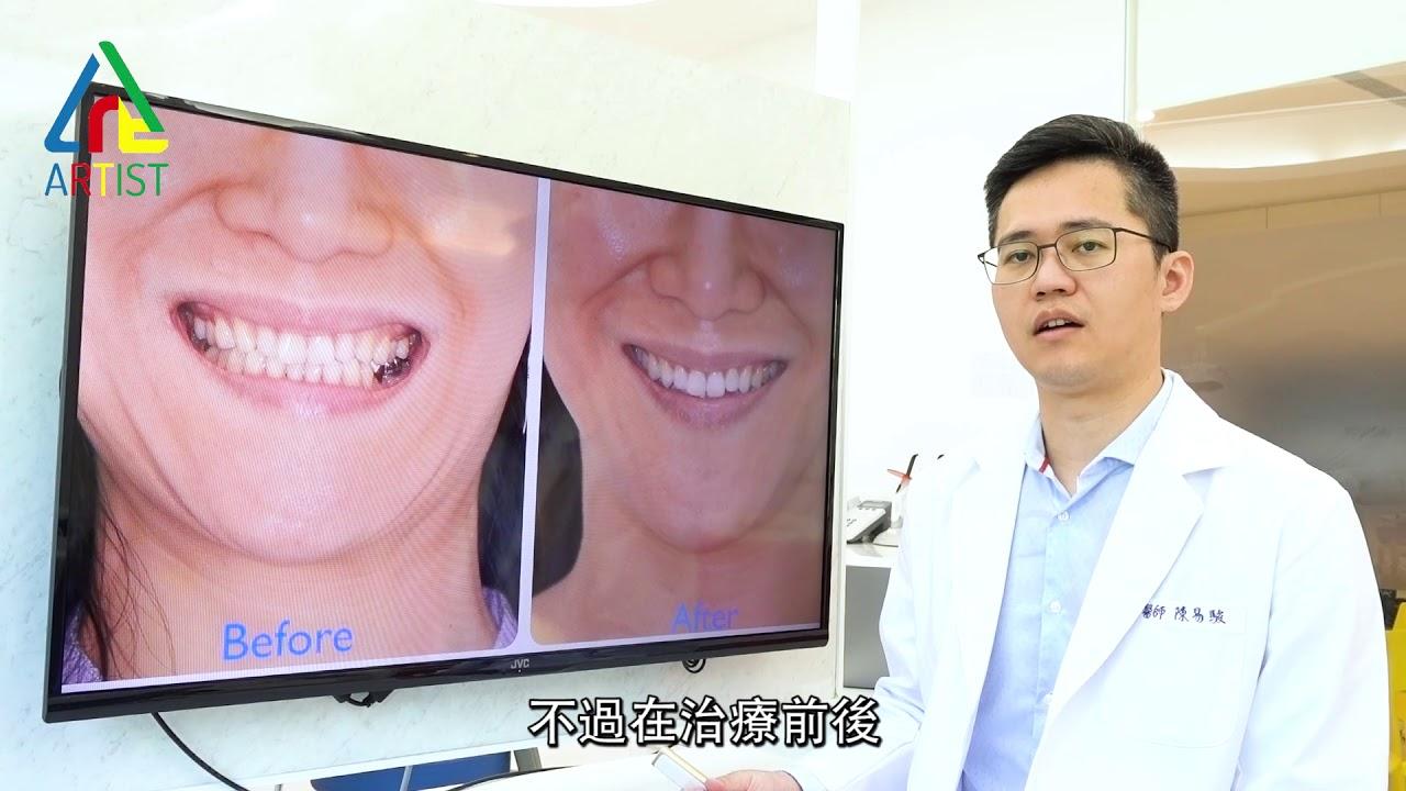 臺中隱適美| 矯正案例- 數位矯正評估,療程更快速 隱形矯正 透明牙套矯正 - YouTube