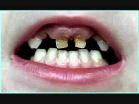 rotten teeth - youtube, Human Body