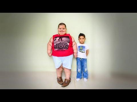 5-Year-Old Boy Weighs A Shocking 178lbs