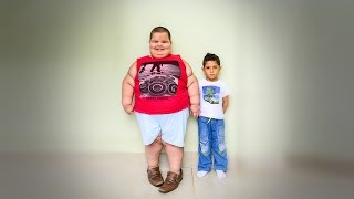 5-Year-Old Boy Weighs A Shocking 178lbs