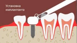 Лазерная имплантация зубов(Лазерная имплантация зубов - процесс вживления искусственного корня произведенного из титана в костную..., 2010-10-06T10:42:26.000Z)