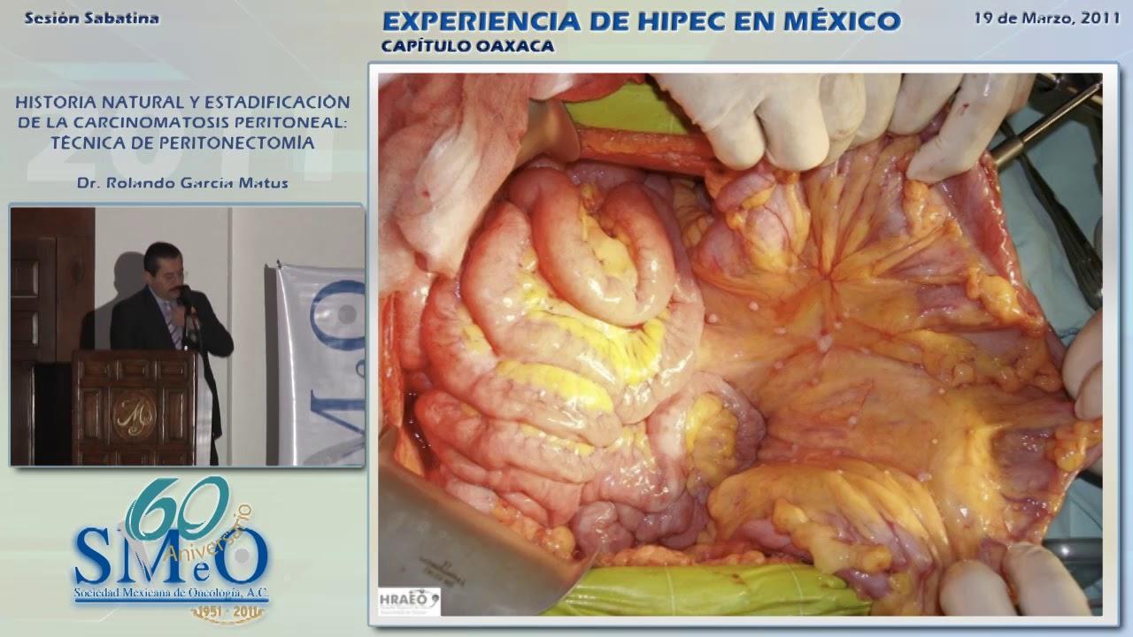 cancer de peritoneal