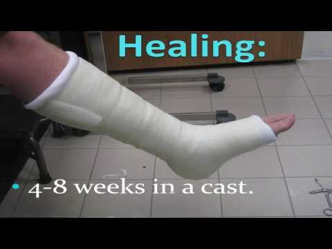 Jones Fracture of the 5th Metatarsal *Complete Treatment Guide*
