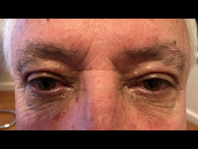 One Week After Male Upper Blepharoplasty (Photos Included)