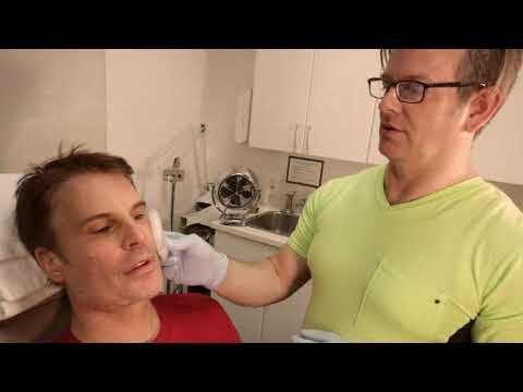 Dr. JPO and Thom Bierdzmale makeover fillers