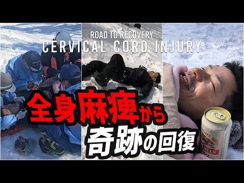 頸髄損傷事故「信じられない事がおれの身に起こった」四肢麻痺 雪山からドクターヘリでICU→5日で自主退院