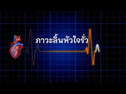 ภาวะลิ้นหัวใจรั่ว