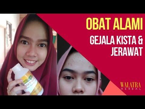 gejala-kista-dan-jerawat-bandel-sembuh-setelah-mengonsumsi-qnc-jelly-gamat