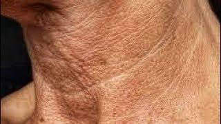 Как убрать морщины и тяжи на шее? Дряблая шея. Молодость и красота шеи.