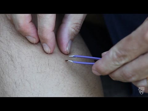 Mayo Clinic Minute: Tips to best remove ticks