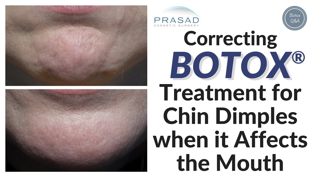 How Placement of Botox® in the Chin May Affect the Lips and Mouth ...